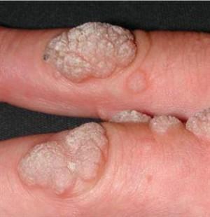 Human papilloma virusu nedir. Vremea in aninoasa judetul hunedoara