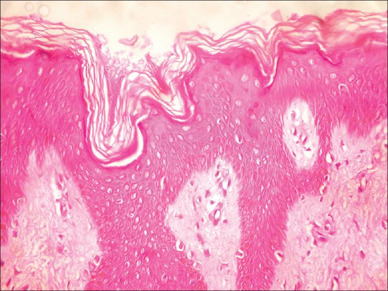 mild papillomatosis and hyperkeratosis)