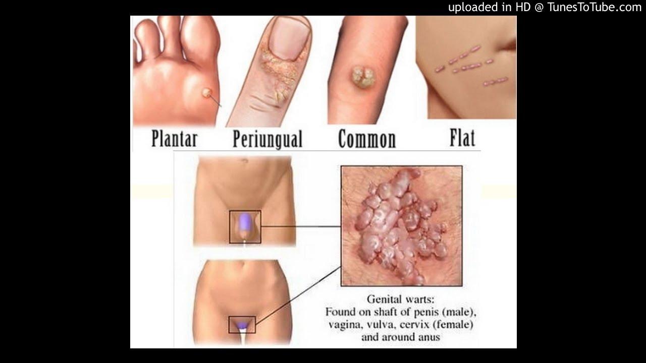 Condyloma acuminata genital warts, Virusul HPV, asimptomatic
