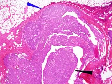 Intraductal papilloma with focal atypical ductal hyperplasia