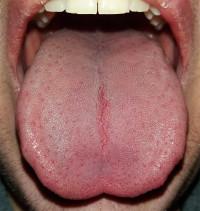 papillomas are also known as tipic pentru viermi rotunzi umani