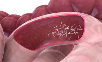 parasitos oxiuros tratamiento casero