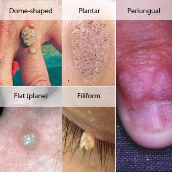 hpv wart removal on face