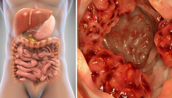 cancerul la colon