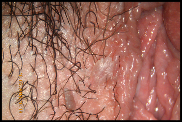 hpv sintomi prurito