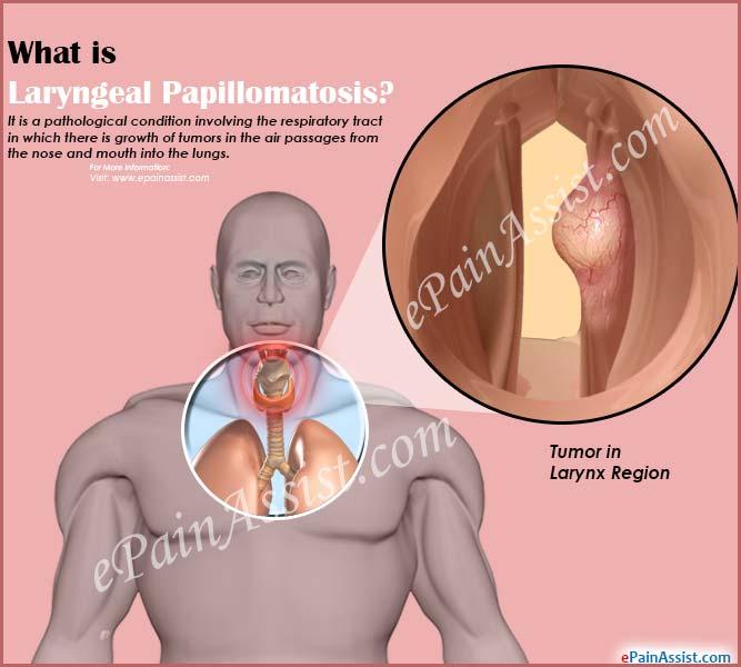 respiratory papillomatosis in infants symptoms