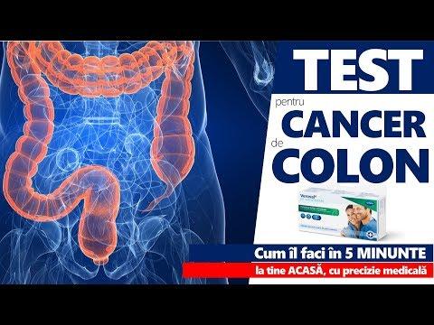cancerul de colon doare la palpare