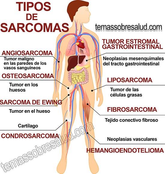 Cancer sarcoma sinovial sintomas