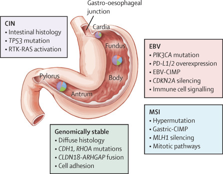 MANAGEMENT OF OESOPHAGEAL CANCER Gastric cancer vascular invasion