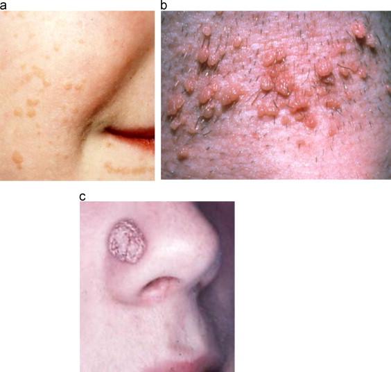 hpv scaly skin)