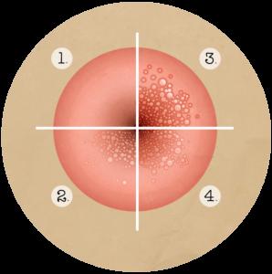 Human papillomavirus immunization