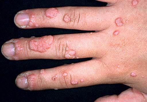 wart virus on hands