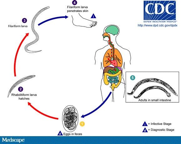 tratamentul cdc giardia