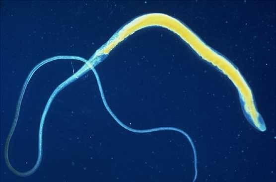 lamblia paraziti tedavisi