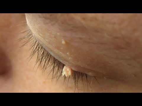 papilloma skin nhs