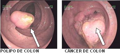 Cancer de colon y manchas en el higado - divastudio.ro