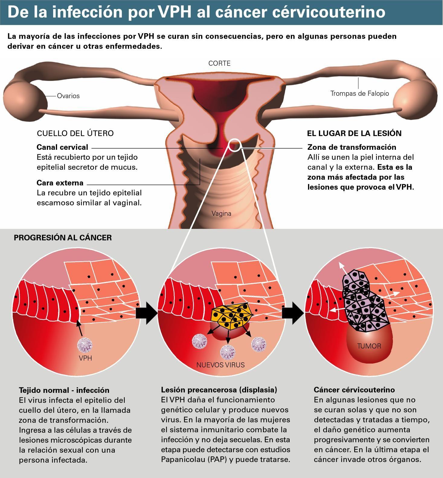 papiloma aparato genital