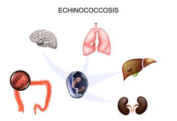 vierme rotunde în tratamentul bronhiilor o que e o papiloma virus
