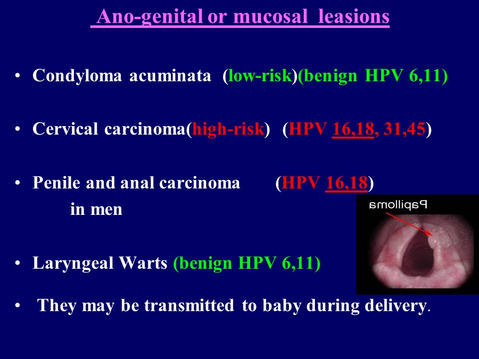 rectal cancer in young adults