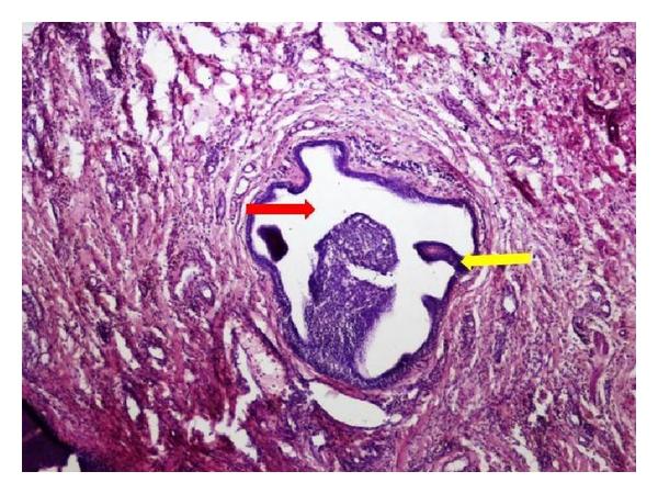 Articulații papilloma - Ductal papilloma minor salivary gland