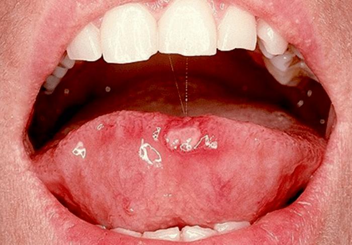 llagas en la boca por papiloma)