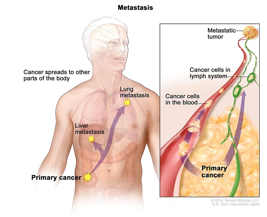 Divastudio Ro Cancer Colon Liver Lung Cancer Colon Liver Lung