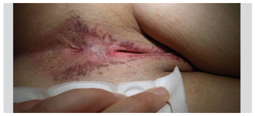 infection a papillomavirus chez l homme)