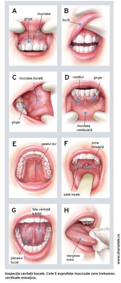 simptomele viermilor la o enterobioză umană adultă l anemie inflammatoire