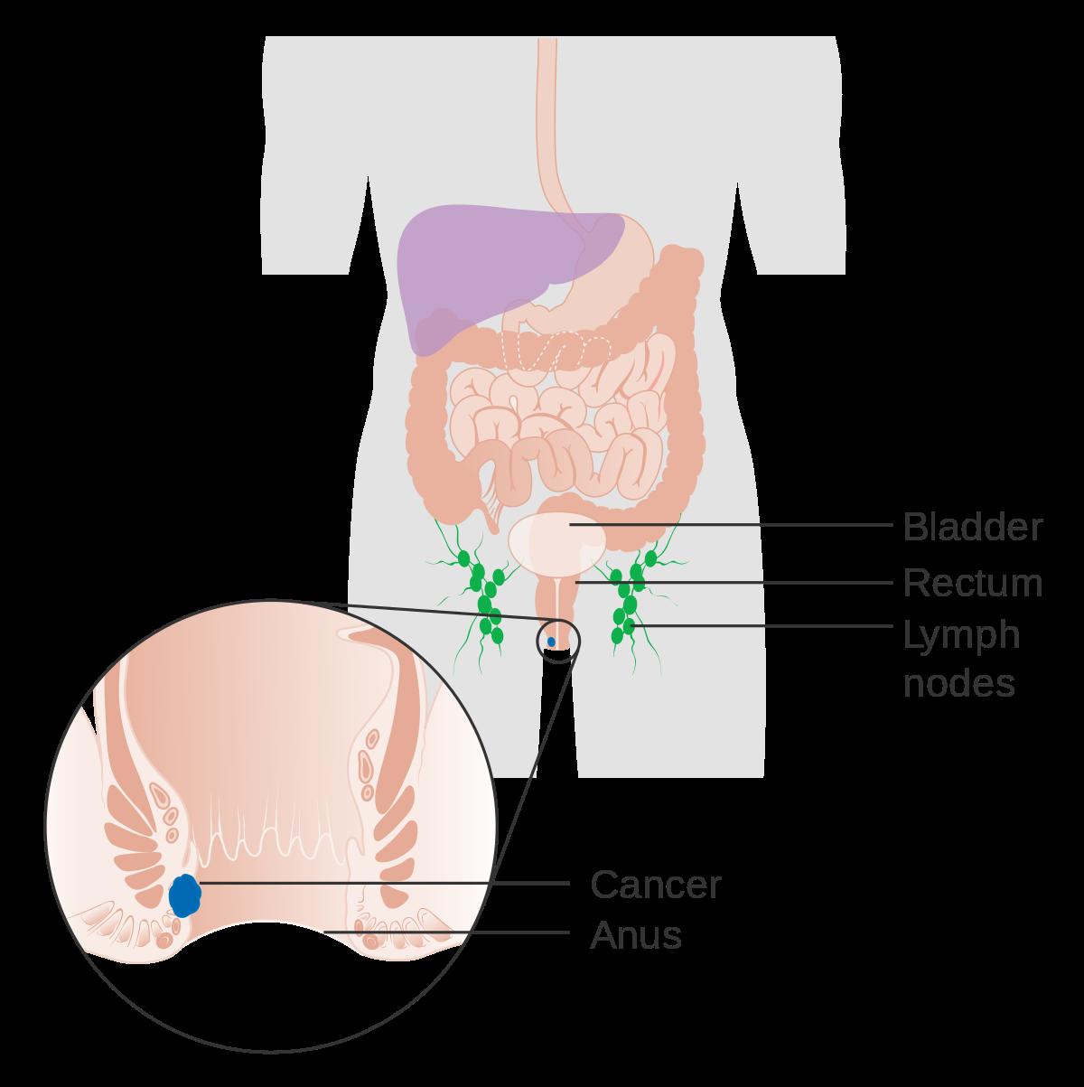 rectal cancer lump
