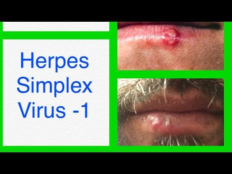 hpv causes cold sores)