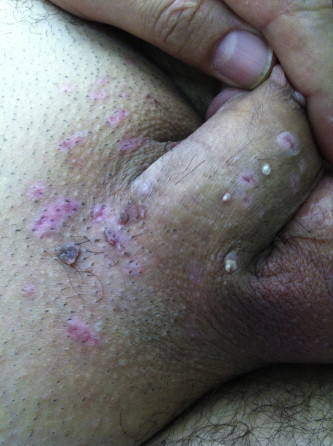 hpv cryotherapy removal