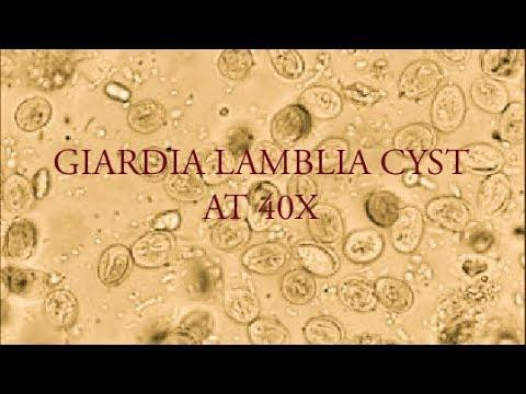 In Romania se acorda prea mare importanta infestarii cu Giardia