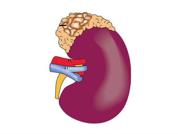 Thyroid disorders. Part III: neoplastic thyroid disease. Endocrine cancer rare