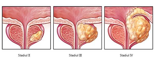 cancer uretra simptome)