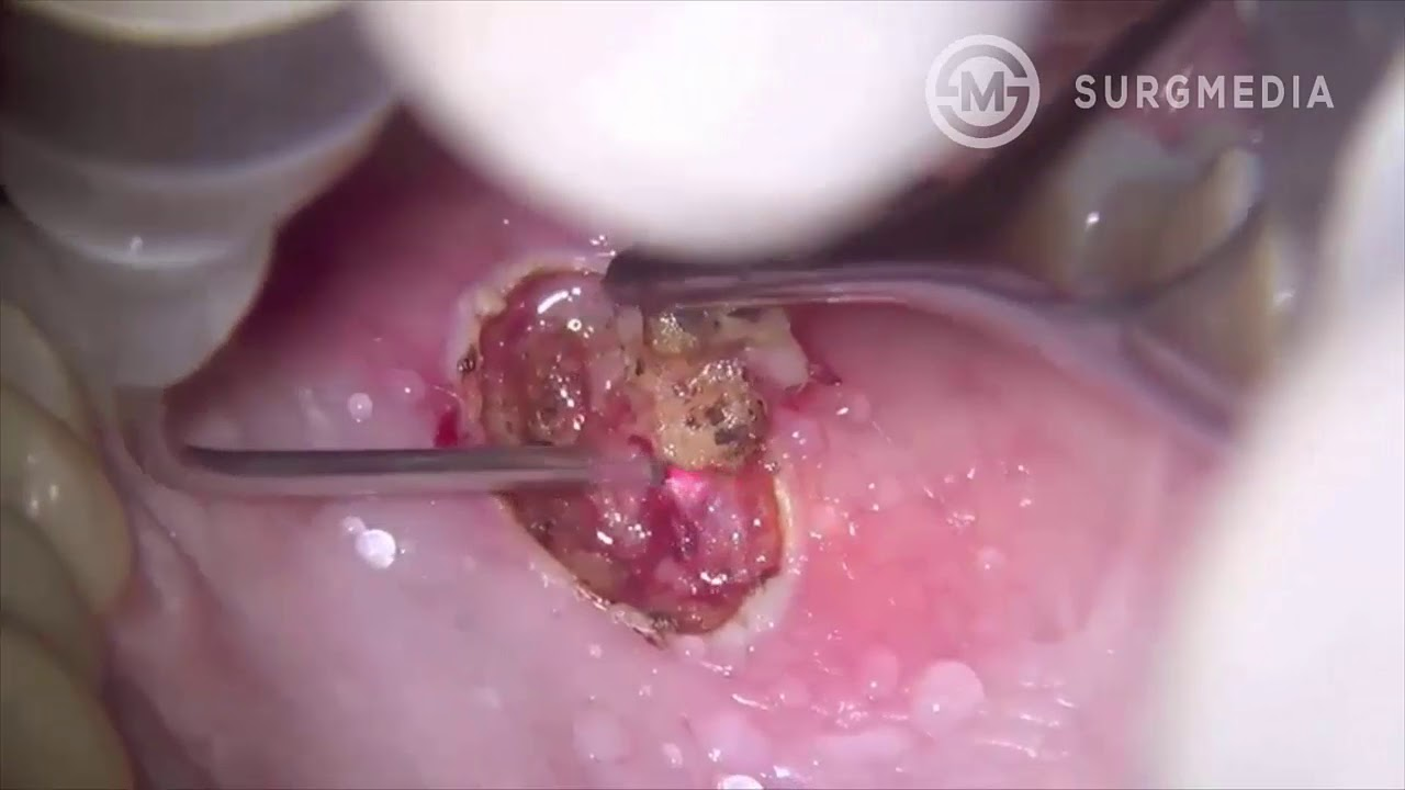 Papilloma cancer definition
