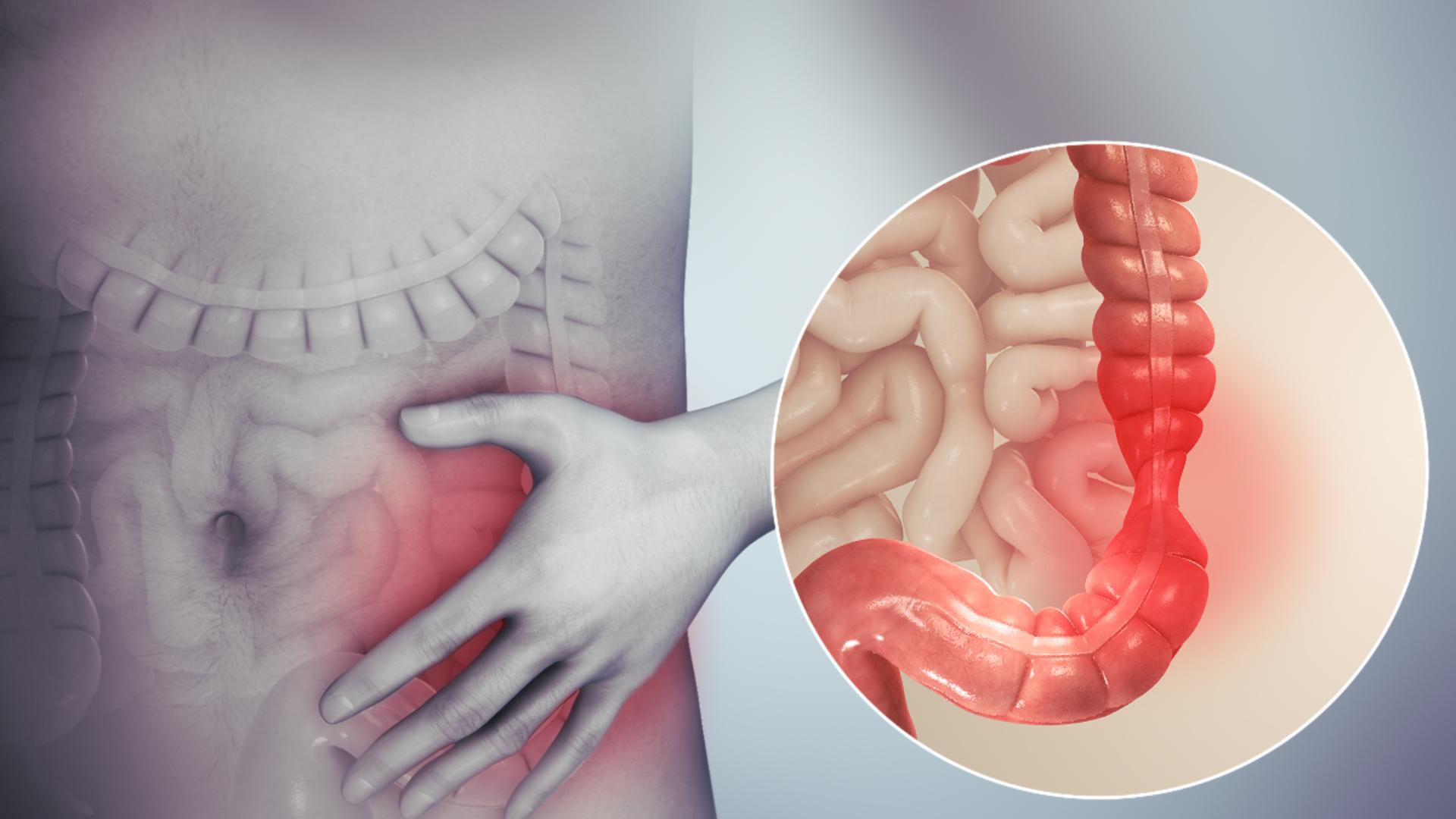 Liver cancer abdominal bloating.