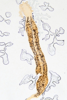 specii de viermi la copii)