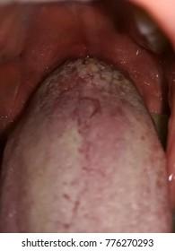 warts on tongue and throat)