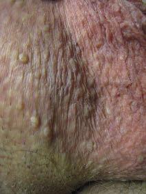 papillomavirus genital humain)