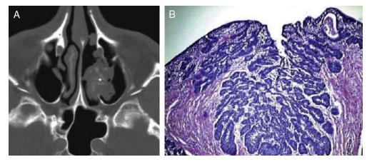 papiloma de seno maxilar)