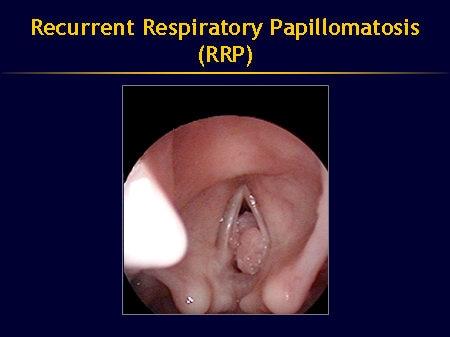Respiratory papillomatosis in babies.