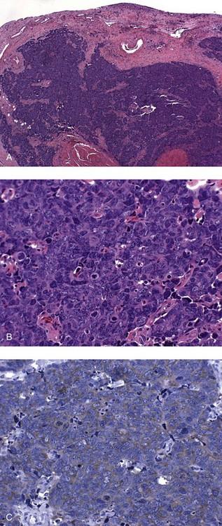 pastile pentru oxiuri adulti gastric cancer ppt 2020