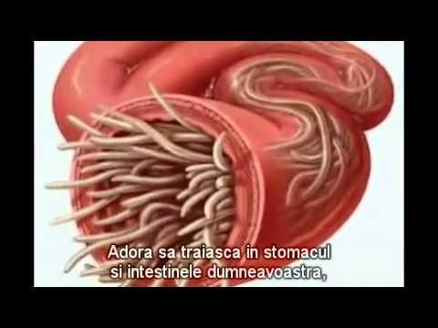 tratamentul nematodelor umane)