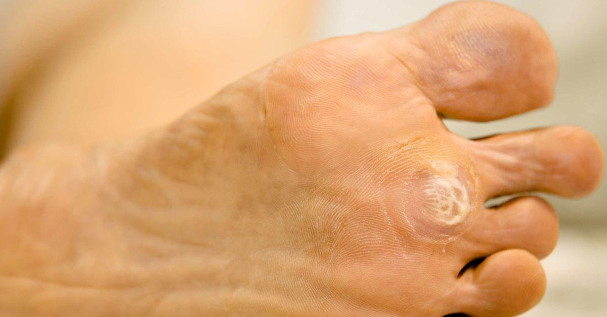 foot warts keep coming back