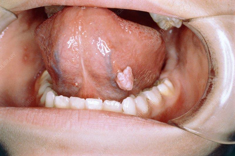 benign wart on tongue)