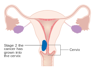 cancer of endometrial lining)