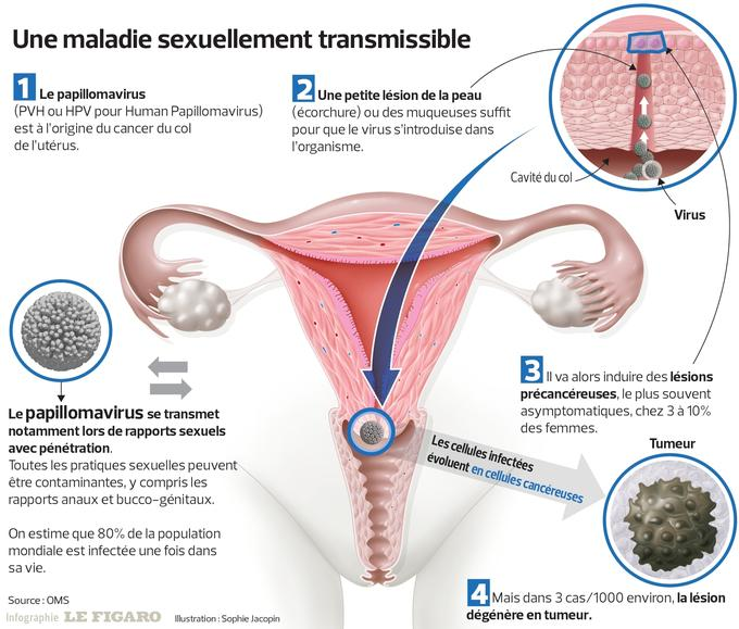 hpv les causes