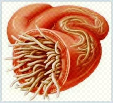 simptome și simptome viermi)