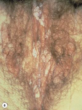 condylomata acuminata en zwangerschap