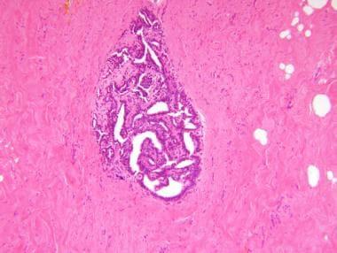 amanita parazit medicament